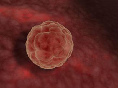 Zigoto implantándose en el útero materno. Según la medicina/ciencia evitar este paso seria interrumpir el embarazo, según la OMS no, puesto que aún no ha comenzado.